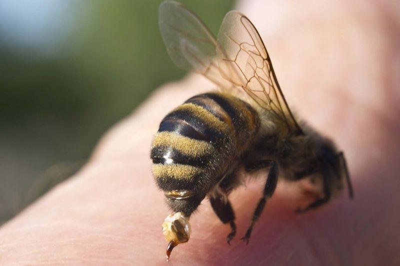 حساسیت به نیش زنبور