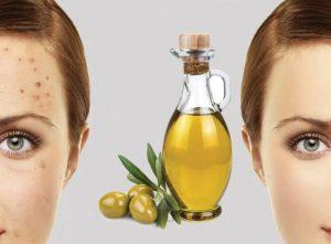 روغن زیتون برای پوست صورت بسیار سودمند می باشد.