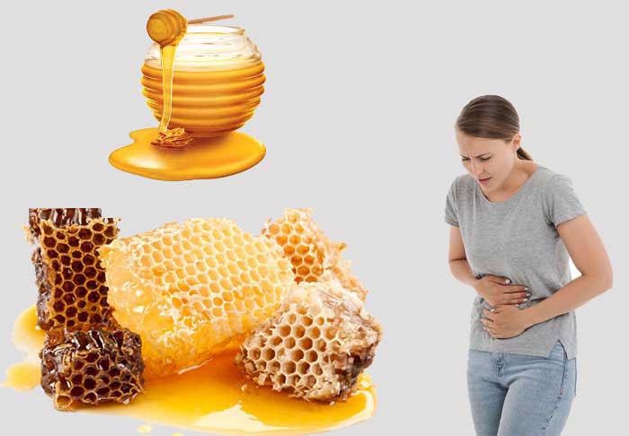 خانمی که بخاطر مصرف بیش از اندازه عسل گون دچار معده درد شده است.