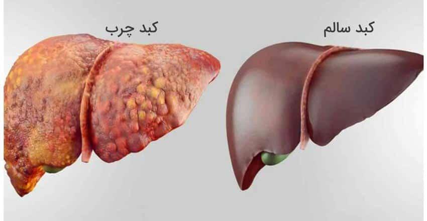 با مصرف اصولی مواد طبیعی میتوانید از بیماری کبدچرب در امان بمانید.