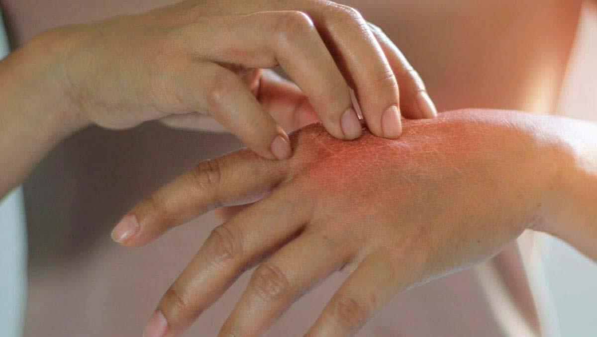 دلدرد، استفراغ، درد در ناحیه معده و مشکلات در گوارش، تپشقلب، خارش و تغییررنگ در چشمها و کبودی لب از علائم حساسیت به گردو است.
