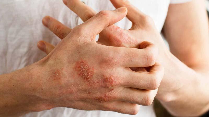 مغز فندق پس از بادام زمینی، شایعترین و رایجترین نوع حساسیت را به وجود میآورد.