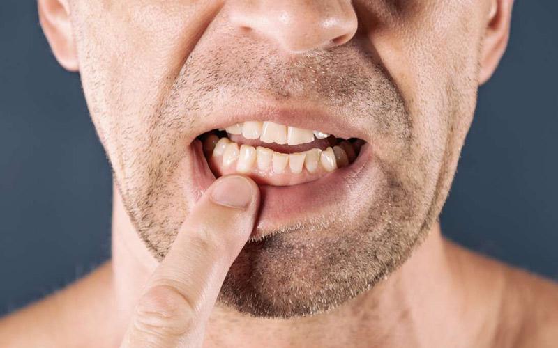 درمان عفونت لثه با عسل از طریق دهانشویه عسل امکانپذیر است.